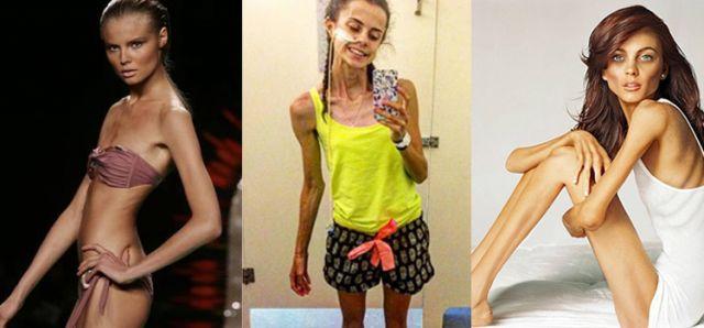 Смерть Моделей От Диет. 10 безумных диет, на которых можно умереть